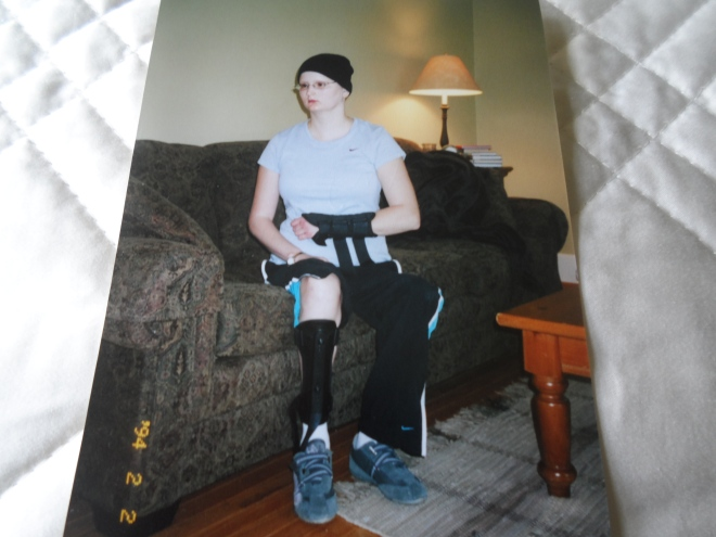 Besides facial paralysis, other permanent side effects include Avascular Necrosis in my left knee wrist, and right ankle.