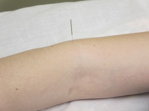 Acupuncture in my arm