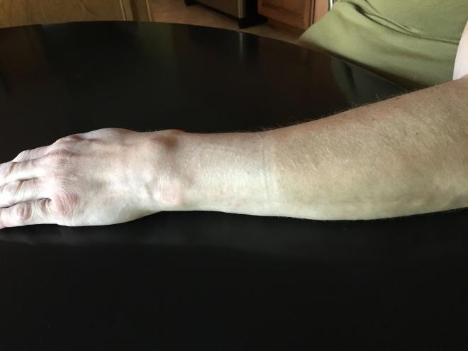 my arm 7-7-18